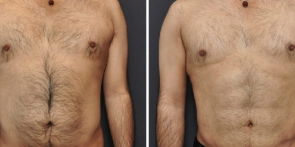 What you should know before having Liposuction